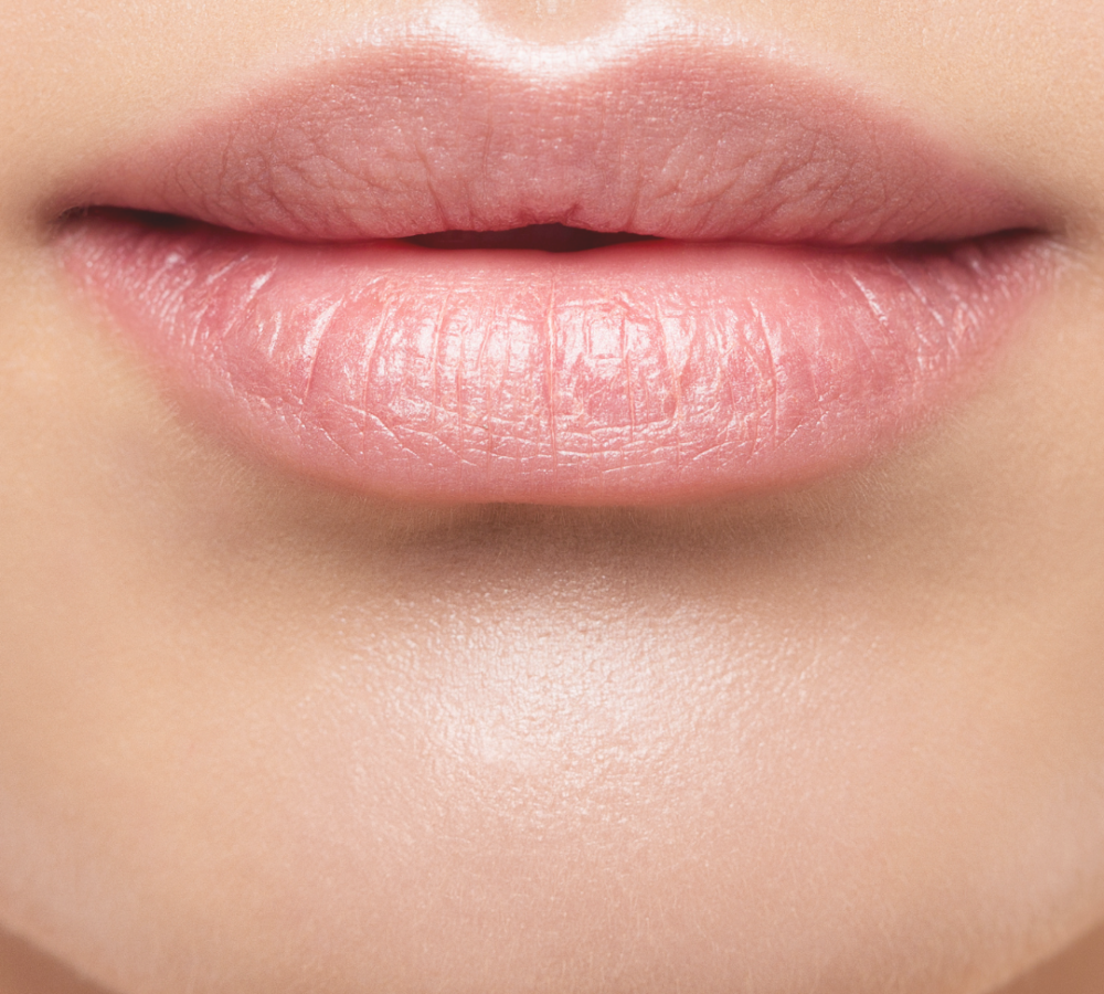 aumento de labio